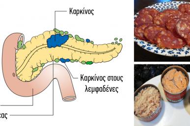 Οι 14 πιο επικίνδυνες τροφές που προκαλούν καρκίνο
