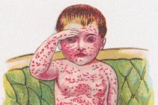Συναγερμός σε γειτονική χώρα με επιδημία ιλαράς, πόσα παιδιά νεκρά