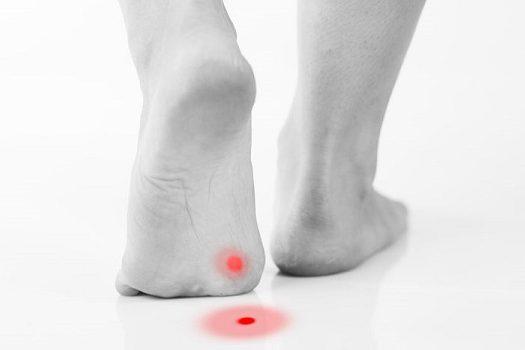 Κάλοι στα πόδια: Πώς συνδέονται με καρκίνο. Προσοχή δεν είναι όλοι ίδιοι