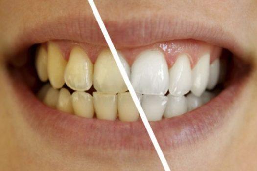 Απίστευτο: Ποιο πασίγνωστο φάρμακο φτιάχνει τα χαλασμένα δόντια