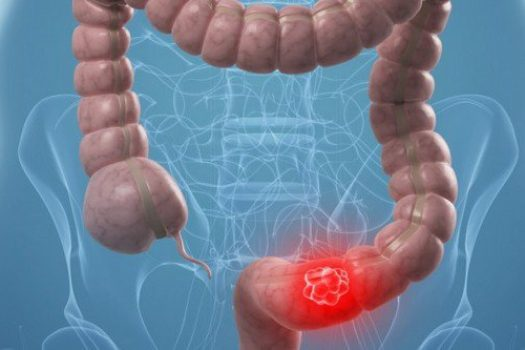 Καρκίνος παχέος εντέρου: Το τραγικό λάθος που κάνει 1 στους 4 ασθενείς