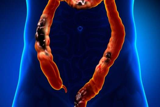 Καρκίνος του παχέος εντέρου: Αυτά είναι τα πρώιμα συμπτώματα. Προσοχή