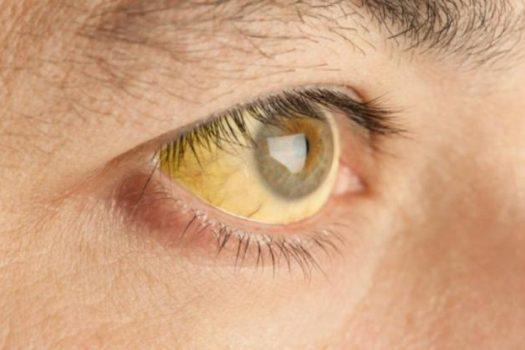 Κίτρινα μάτια: Τι μαρτυρούν για την υγεία σας