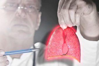 Καρκίνος του πνεύμονα: Πώς μπορεί να πάθετε ακόμα κι αν δεν καπνίζετε
