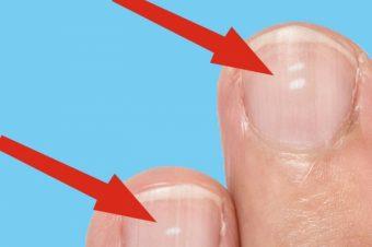 Λευκά σημάδια στα νύχια: Ποιος ο κίνδυνος για την υγεία