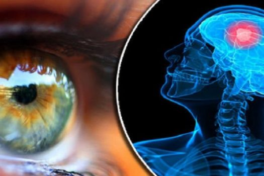Ποιες σοβαρές ασθένειες φαίνονται στα μάτια: Ποιο το απλό τεστ που θα σας σώσει