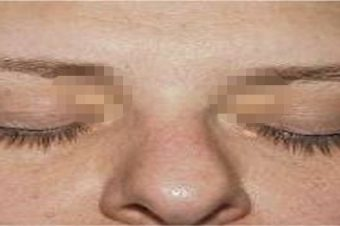 Προσοχή: Αν έχετε αυτά τα σημάδια πάνω από τα μάτια πάσχετε από… [φωτο]