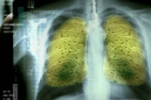Ποιο το απίθανο ρόφημα που εξαφανίζει πίσσα και νικοτίνη από τα πνευμόνια