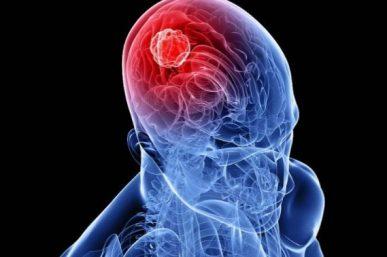 Ποιος ξηρός καρπός διώχνει άμεσα τον πονοκέφαλο καλύτερα και από την ασπιρίνη