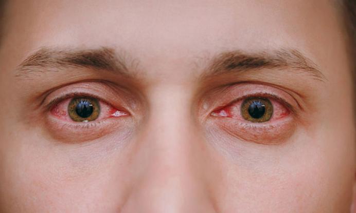 9056011c47cc Κόκκινα μάτια  Ποιες οι 5 αιτίες. Ποιες ασθένειες κρύβονται – Gossip ...