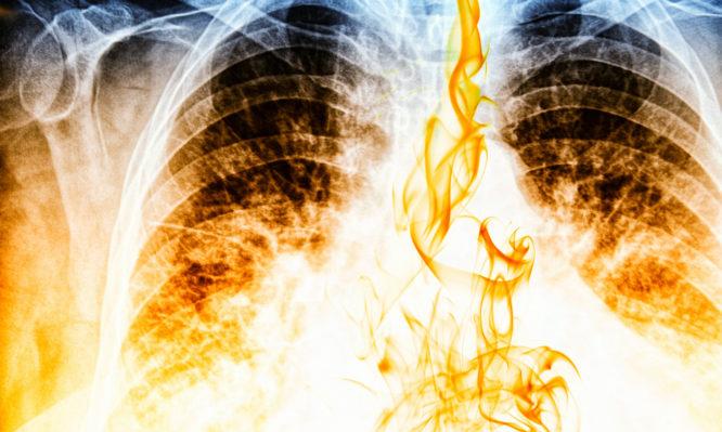 Σε πόσο καιρό θα καθαρίσουν τα πνευμόνια αν κόψετε το κάπνισμα ... be9e1e5c39c